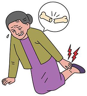 転んで足首を折る女性